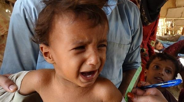 Kríza v Jemene pokračuje