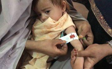 Pomoc pre podvyživené deti v Afganistane